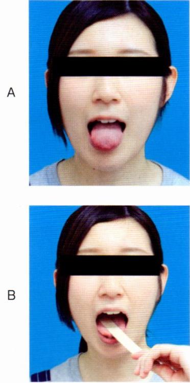 第26回歯科衛生士国家試験問題午前画像108