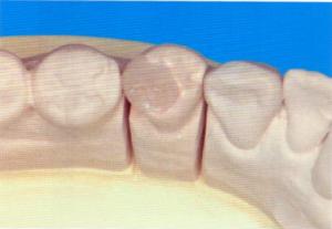 第26回歯科衛生士国家試験問題午前画像39