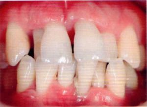 第26回歯科衛生士国家試験問題午前画像44