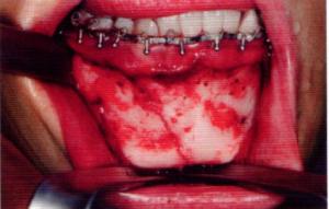 第26回歯科衛生士国家試験問題午前画像50