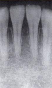 第26回歯科衛生士国家試験問題午前画像64