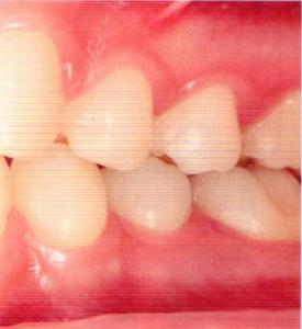 第26回歯科衛生士国家試験問題午前画像66