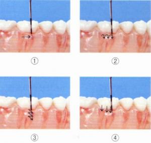 第26回歯科衛生士国家試験問題午前画像75