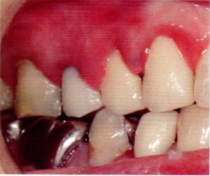 第26回歯科衛生士国家試験問題午前画像83