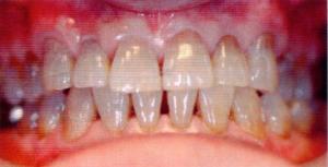 第26回歯科衛生士国家試験問題午後画像37