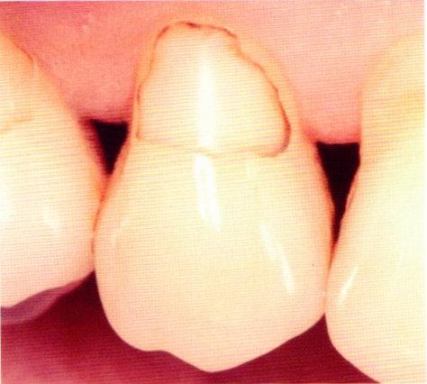 第27回歯科衛生士国家試験問題午後画像39