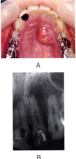 第27回歯科衛生士国家試験問題午後画像42