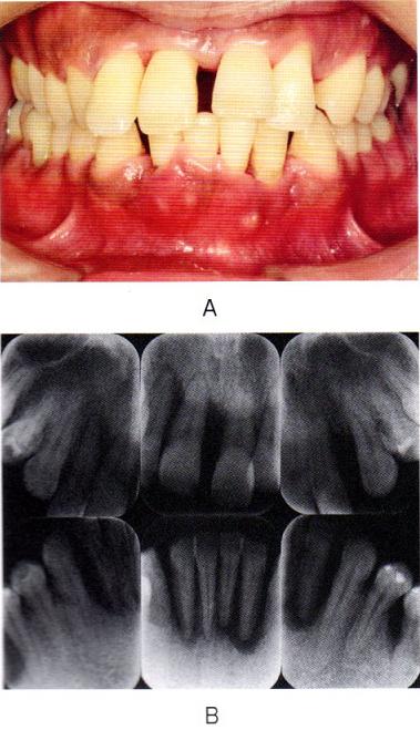 第27回歯科衛生士国家試験問題午後画像43