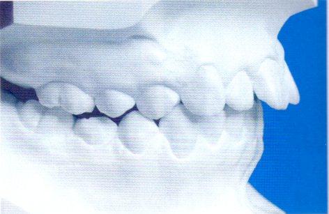第27回歯科衛生士国家試験問題午後画像53