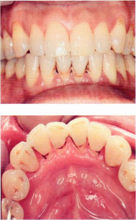 第27回歯科衛生士国家試験問題午後画像6566