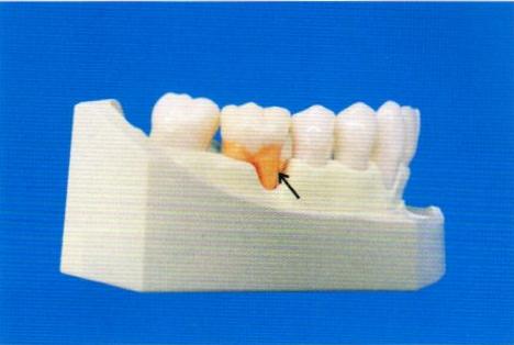 第27回歯科衛生士国家試験問題午後画像69