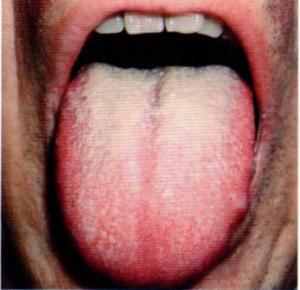 第26回歯科衛生士国家試験問題午後画像83