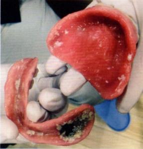 第26回歯科衛生士国家試験問題午後画像86