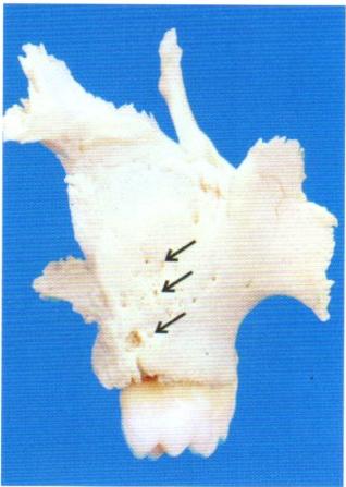 第27回歯科衛生士国家試験問題写真1