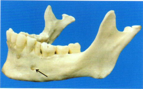 第27回歯科衛生士国家試験問題写真4
