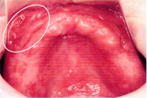第27回歯科衛生士国家試験問題写真47-48