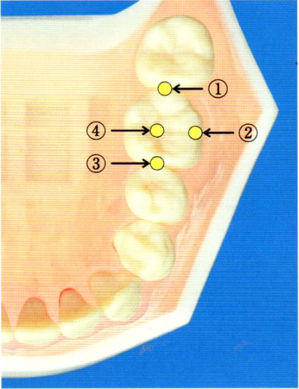 第27回歯科衛生士国家試験問題写真52