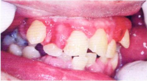 第27回歯科衛生士国家試験問題写真6162