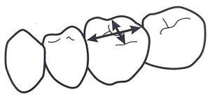 第25回歯科衛生士国家試験問題午後69