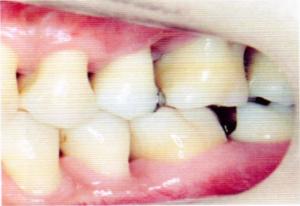第25回歯科衛生士国家試験問題午後画像39