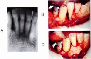第25回歯科衛生士国家試験問題午後画像43