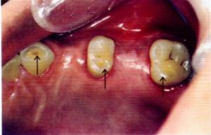 第25回歯科衛生士国家試験問題午後画像45