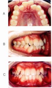 第25回歯科衛生士国家試験問題午後画像52