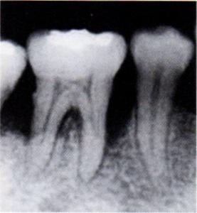 第25回歯科衛生士国家試験問題午後画像64