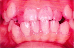 第25回歯科衛生士国家試験問題午後画像84-85