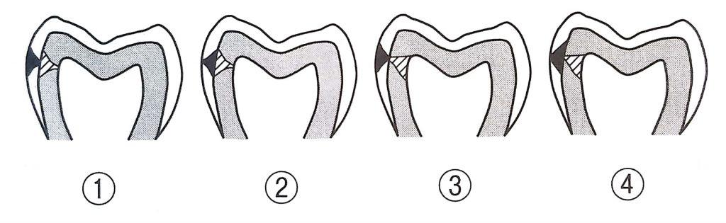 第25回歯科衛生士国家試験問題午前10