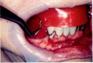 第25回歯科衛生士国家試験問題午前画像109