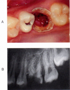 第25回歯科衛生士国家試験問題午前画像41