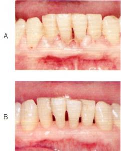 第25回歯科衛生士国家試験問題午前画像44ab
