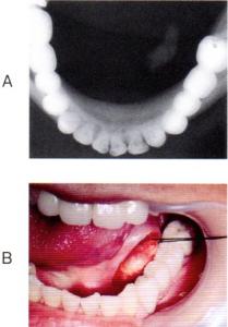 第25回歯科衛生士国家試験問題午前画像50