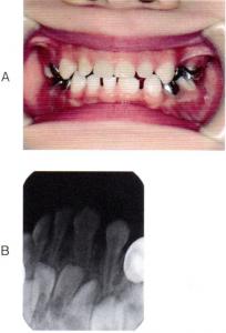 第25回歯科衛生士国家試験問題午前画像56