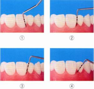 第25回歯科衛生士国家試験問題午前画像69