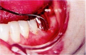 第25回歯科衛生士国家試験問題午前画像70