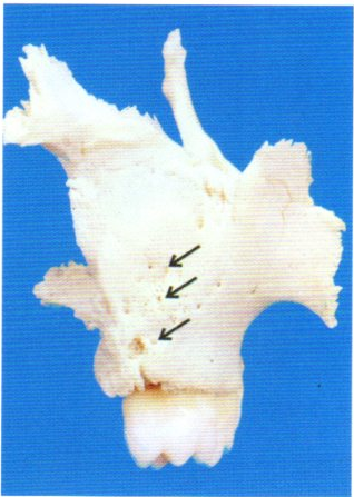 第 29 回 歯科 衛生 士 国家 試験