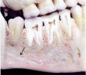 第25回歯科衛生士国家試験問題午前画像1